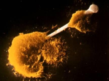 Celulas&Amianto